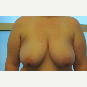 Breast Reduction before 3130307