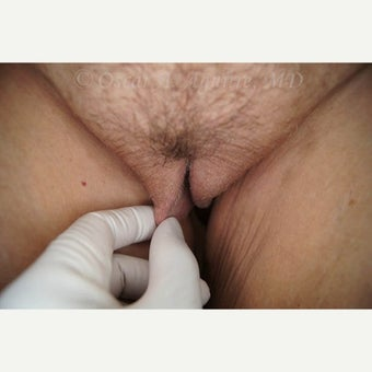 53 yo female treated with Labia Majora Reduction and Vaginoplasty (View 4 of 4) before 2150277
