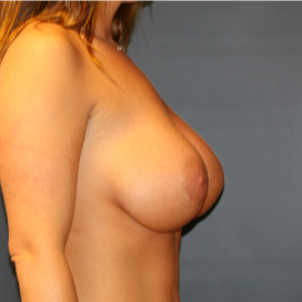 26 year old woman treated with Breast Implants after 2989653