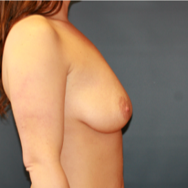 26 year old woman treated with Breast Implants before 2989653