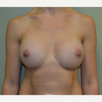 35-44 year old woman treated with Breast Augmentation after 3400635