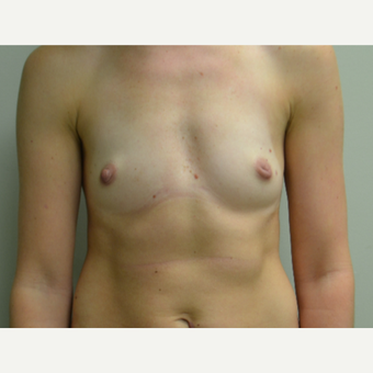 35-44 year old woman treated with Breast Augmentation before 3400635