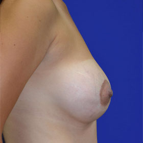 25-34 year old woman treated with Breast Lift with Implants after 3520056