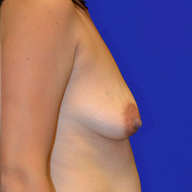 25-34 year old woman treated with Breast Lift with Implants before 3520056