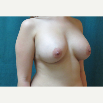 25-34 year old woman treated with Breast Augmentation after 3671501