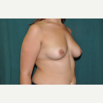25-34 year old woman treated with Breast Augmentation before 3671501