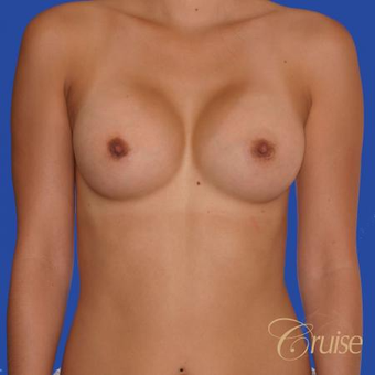 26 year year old woman treated with Saline Breast Implants after 3833221