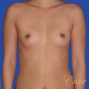 26 year year old woman treated with Saline Breast Implants before 3833221