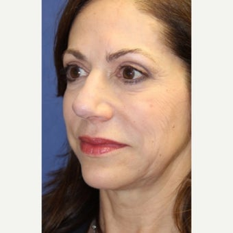 59 year old woman treated with an open secondary reconstructive rhinoplasty after 2621481