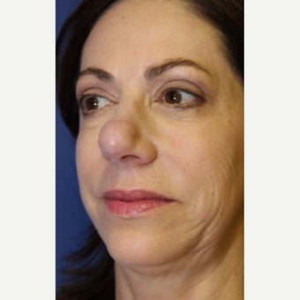 59 year old woman treated with an open secondary reconstructive rhinoplasty before 2621481