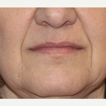 55-64 year old woman treated with Restylane before 2036848