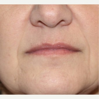 55-64 year old woman treated with Restylane after 2036848