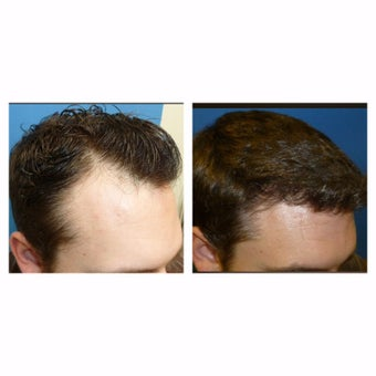 25-34 year old man treated with FUE Hair Transplant before 2645059