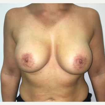 Breast Lift and circumareolar mastopexy after 3475729