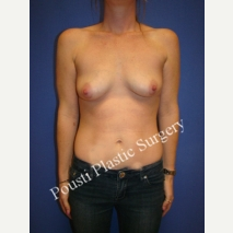 25-34 year old woman treated with Mentor Breast Implants before 3072171