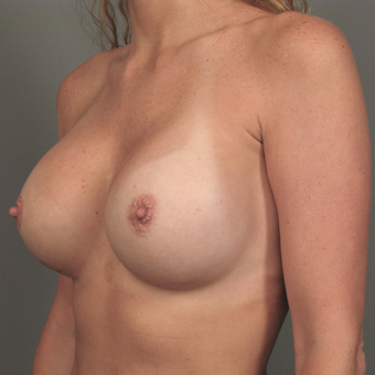 35-44 year old woman treated with Breast Augmentation with Strattice after 3293013