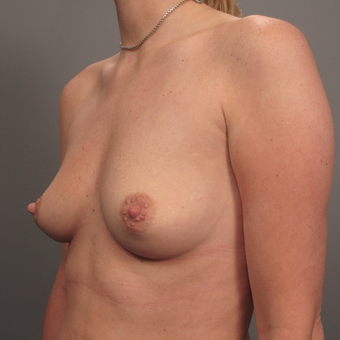 35-44 year old woman treated with Breast Augmentation with Strattice before 3293013