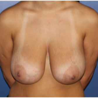 25-34 year old woman treated with Breast Lift before 3695886