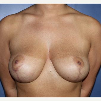 25-34 year old woman treated with Breast Lift after 3695886