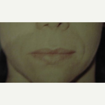 35-44 year old woman treated with Lip Lift before 1622514