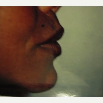 35-44 year old woman treated with Lip Lift 1622514