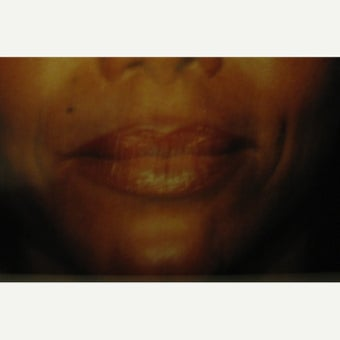 35-44 year old woman treated with Lip Lift after 1622514