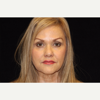 55-64 year old woman treated with Liquid Facelift after 3502817