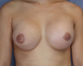 Breast Asymmetry Correction after 281318