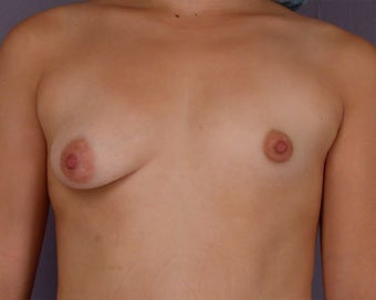 Breast Asymmetry Correction before 281318