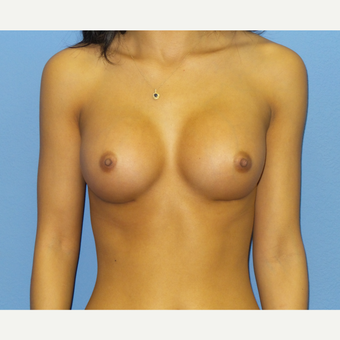 18-24 year old woman treated with Breast Augmentation after 3076800