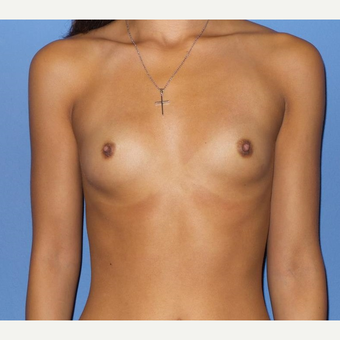 18-24 year old woman treated with Breast Augmentation before 3076800