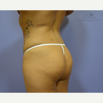 25-34 year old woman treated with Butt Augmentation before 3421202