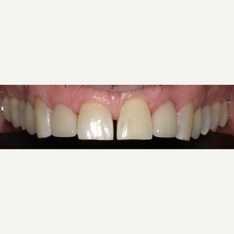 45-54 year old man treated with Porcelain Veneers after 3542575