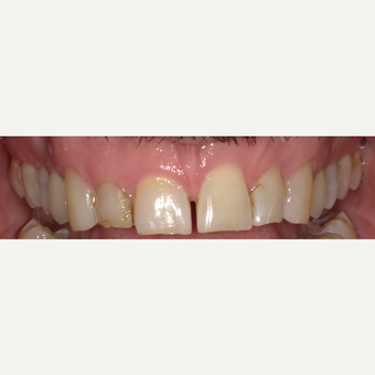 45-54 year old man treated with Porcelain Veneers before 3542575