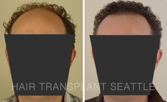 45-54 year old man treated with Hair Transplant before 2990015