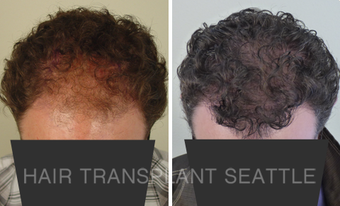 45-54 year old man treated with Hair Transplant after 2990015