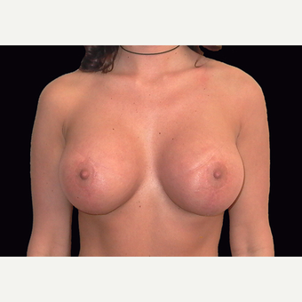 25-34 year old woman treated with Breast Lift with Implants after 3027878