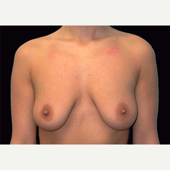 25-34 year old woman treated with Breast Lift with Implants before 3027878
