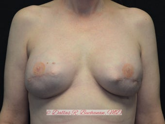 46 year old woman treated with implant based breast reconstruction after 2807572