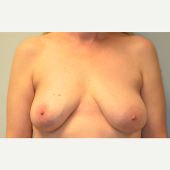 46 year old woman treated with implant based breast reconstruction before 2807572