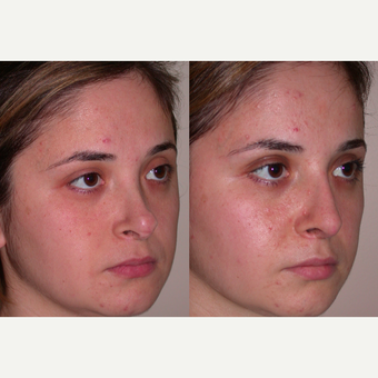 25-34 year old woman treated with Revision Rhinoplasty after 3521403