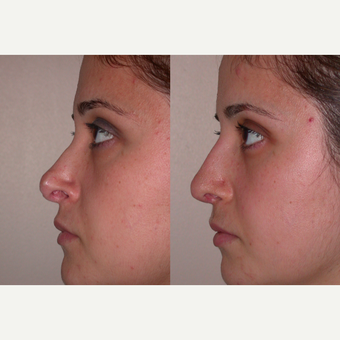 25-34 year old woman treated with Revision Rhinoplasty before 3521403