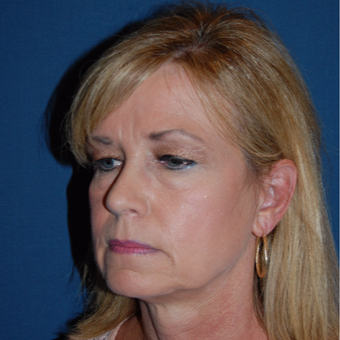 45-54 year old woman treated with Facelift before 3659178