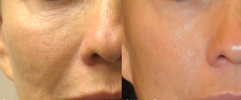 Sublative and ePrime for natural volume enhancement in cheeks before 1136366