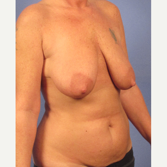 35-44 year old woman treated with Breast Lift before 3095866