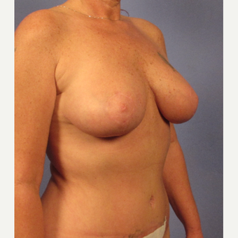35-44 year old woman treated with Breast Lift after 3095866