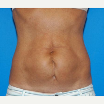 Tummy Tuck before 3241369