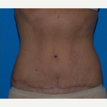 Tummy Tuck after 3241369