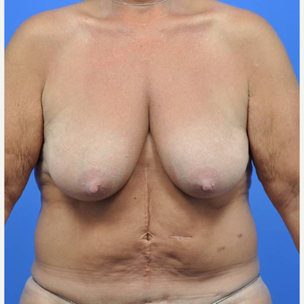 55-64 year old woman treated with Breast Reduction before 3442592