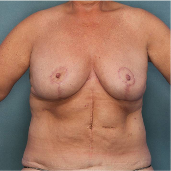 55-64 year old woman treated with Breast Reduction after 3442592